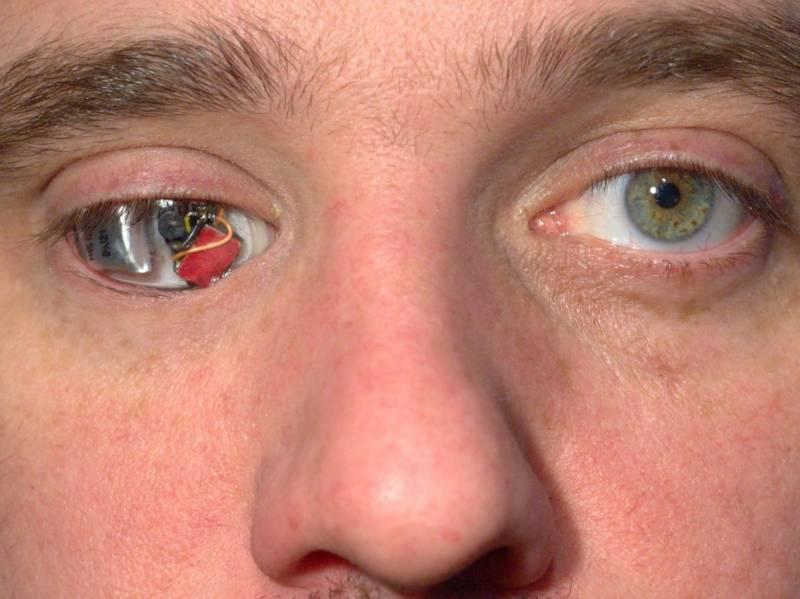 کینیڈا میں آنکھ ضائع ہونے پر نوجوان نے آنکھ کے بجائے کیمرہ لگوا لیا