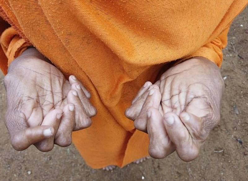 """بھارت:31 انگلیوں والی خاتون """"ڈائن"""" قرار،شہری خوفزدہ"""