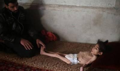 اس وقت دنیا بھر میں بیاسی کروڑ سے زائد انسان بھوک اور کم خوراکی کا شکار