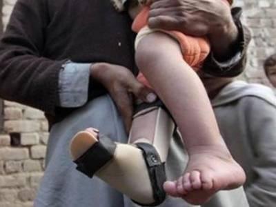 خیبر پختونخوا سے پولیو کے پانچ کیسز سامنے آگئے,پاکستان میں پولیو کیسز کی تعداد 37 ہوگئی