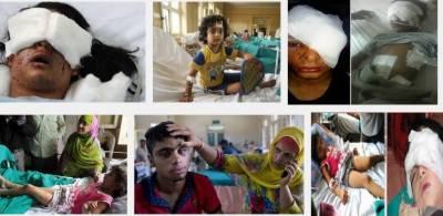 مقبوضہ کشمیر:بھارتی فورسزکی کارروائیاں،پیلٹ گنوں سے متاثرین کی تعداد میں اضافہ,رپورٹ