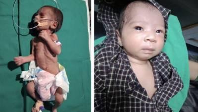 بھارت:مٹی کے برتن میں زندہ دفن کی جانے والی بچی صحتیاب