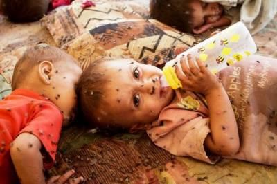 ملک بھر میں پونے 2 کروڑ بچوں کے پیٹ میں کیڑے ہونے کا انکشاف