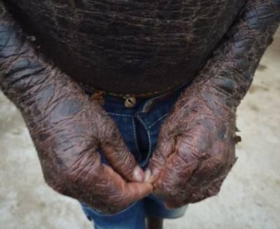 نئی دہلی:10 سالہ بچہ سانپ میں تبدیل