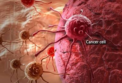 روزمرہ زندگی میں تبدیلی لا کر سرطان جیسے موذی مرض سے بچاﺅ ممکن ہے، تحقیق