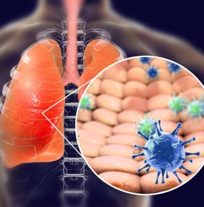 پھیپھڑوں میں فائبروسس کے مرض کا شبہ کورونا وائرس کی طرف جاسکتا ہے، طبی ماہرین