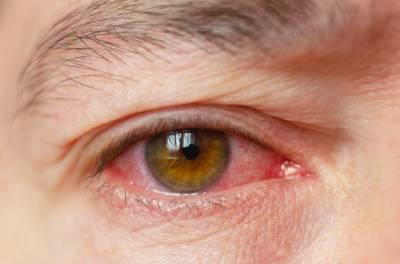 آنکھوں کا سرخ ہونا بھی کرونا کی علامت ہے:امریکی نرس