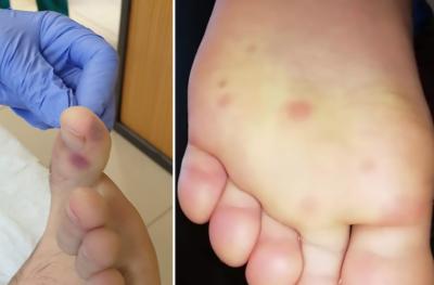 پاؤں پر نشانات بھی کرونا وائرس کی نئی علامت ہوسکتے ہیں: ماہرین