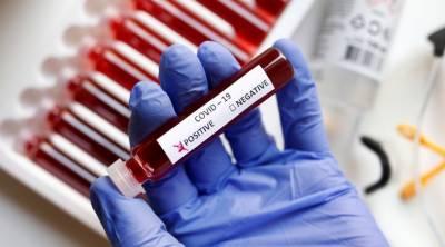 متحدہ عرب امارات میں کورونا وائرس کی تشخیص کے لئے 20 لاکھ سے زائد شہریوں کے ٹیسٹ