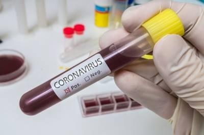 مخصوص بلڈ گروپ لوگوں میں کورونا کا خطرہ بڑھاتا ہے: تحقیق میں انکشاف