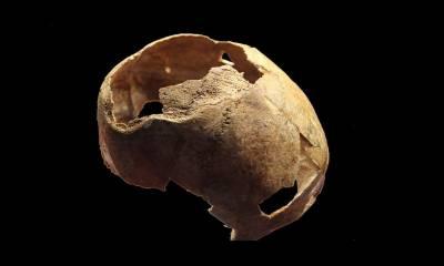 ماسکو:5000 سال قدیم آپریشن ہوئی کھوپڑی دریافت
