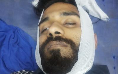 اسلام آباد: نیشنل یو نیورسٹی آف ماڈرن لینگوئج(نمل)کے باہر دو طلبا گروپوں میں تصادم کے نتیجے میں ایک طالبعلم جاں بحق اور5زخمی ہو گئے