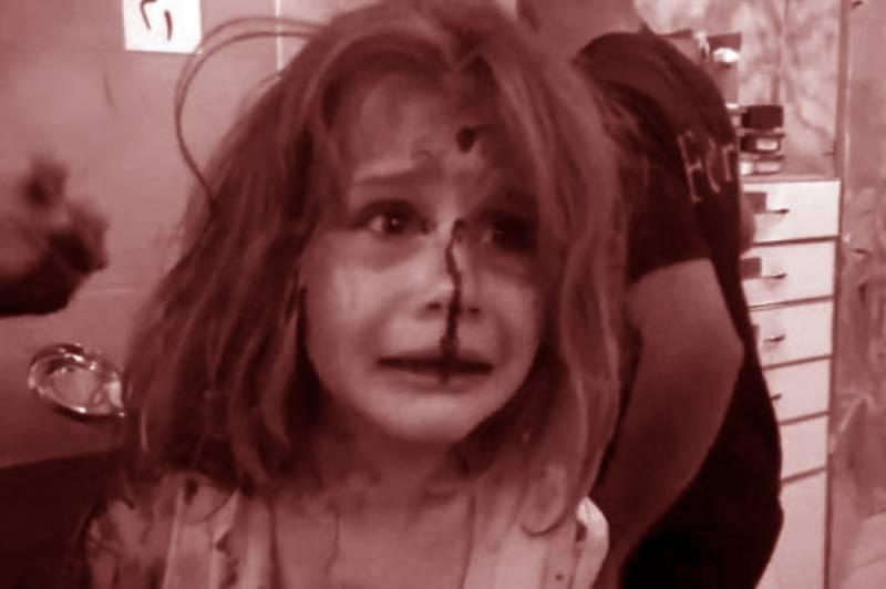 شام :فضائی حملے میں زخمی ننھی آیا کی چیخوں نے ہر صاحب دل کو رُلا دیا