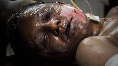 سوپور میں عسکرےت پسندوں کا دستی بم حملہ، سی آر پی ایف اہلکار زخمی