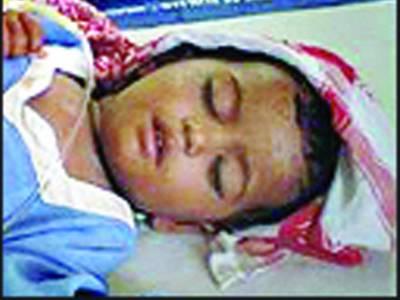 کہروڑ پکا : محنت کشن کی بیٹی خسرے میں مبتلا' ہسپتال میں ادویات ندارد