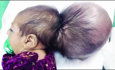 جلال آباد: ڈاکٹروں نے نومولود بچی کا فالتو سر آپریشن کرکے ہٹا دیا، حالت نازک