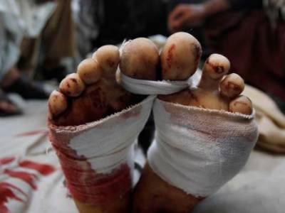 بھاٹی گیٹ، ٹاﺅن شپ، اسلام پورہ سے خاتون سمیت 3 افراد کی نعشیں برآمد