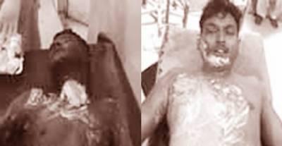 گوجرانوالہ : دوست سے جھگڑے پر دلبرداشتہ نوجوان نے پٹرول چھڑک کر خود کو زندہ جلا لیا ناراض دوست بچاتے ہوئے جھلس گیا