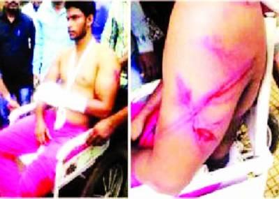 ممبئی میں مسلمان ہونا جرم، پولیس کا 2 نوجوانوں پر بدترین تشدد، پاکستان جانے کی تنبیہ
