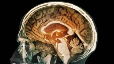 """""""باتونی"""" دماغ جلد بے ہوش نہیں ہوتا: تحقیق"""