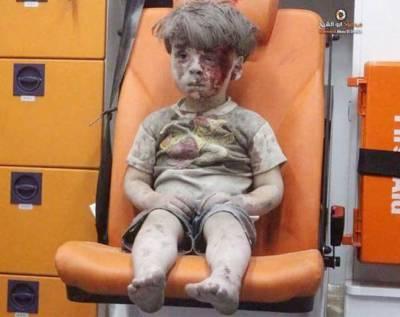 شام: فضائی حملے میں زخمی 5 سالہ عمر کی سوشل میڈیا پر تصویر نے دنیا کو ہلا کر رکھ دیا