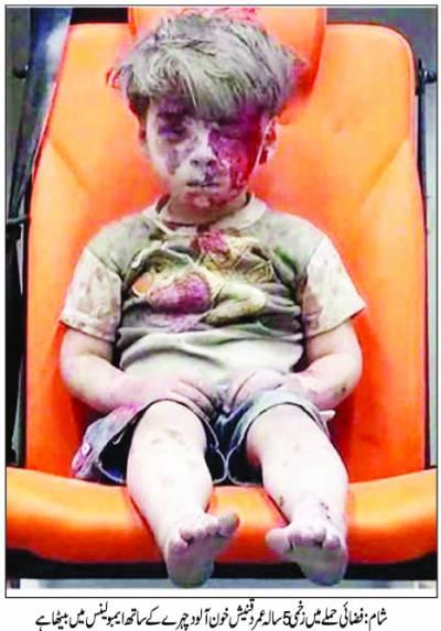حلب میں باغیوں کے زیر قبضہ علاقوں میں زہریلی کلورین گیس کے حملے گرد اور خون میں لپٹے ہوئے بچے کی تصویر شامی کارکنوں نے جاری کی