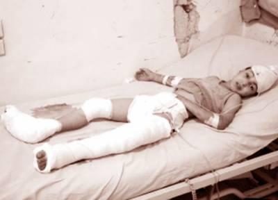 شام میں حملے رکوانے کیلئے نیوزی لینڈ کی سلامتی کونسل میں قرارداد: حلب' بمباری جاری' ہلاکتیں 145 ہو گئیں