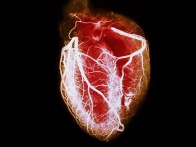 محدود استعمال دل کی بیماریوں کیلئے مفید ہے: طبی ماہرین