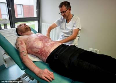 فرانس: جھلسے شخص کو جڑواں بھائی کی جلد لگادی گئی، اپنی نوعیت کا پہلا آپریشن ہے