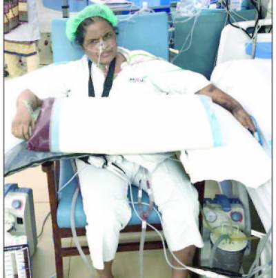 قومی ادارہ امراض قلب میں مصنوعی دل کی مریضہ تیزی سے روبصحت