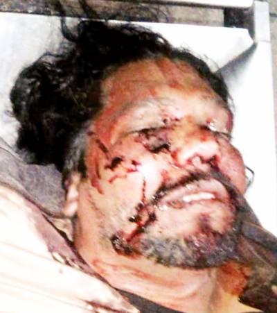 7 ڈاکے: لاکھوں کا نقصان' لوئر مال مقابلہ میں ڈاکو مارا گیا