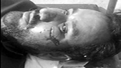 روہیلانوالی میں میپکو کا اسسٹنٹ لائن مین کتوں کے کاٹنے سے زخمی
