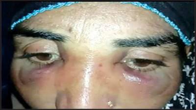 تاخیر سے آنے پر ملازمہ پر تشدد، ناک کی ہڈی توڑ دی